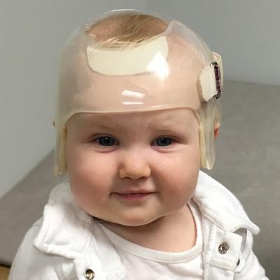 Cranial Remolding